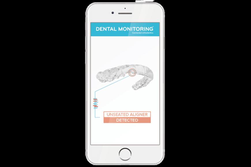 Dental Monitoring