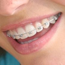 Damon® braces